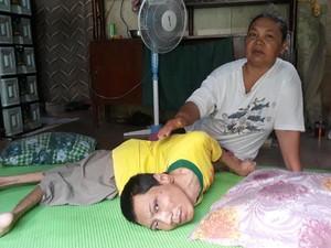 Kisah Yudo, 34 Tahun Hanya Terbaring Karena Cacat