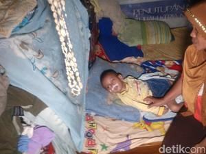 Terserang Miningitis, Bocah Cirebon Ini Makan Lewat Slang