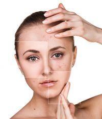 Ilustrasi untuk wajah berjerawat