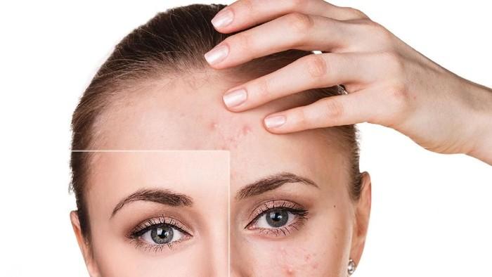 Studi terbaru menyebut jerawatan yang sering terjadi bukan hanya masalah kulit, namun juga bisa mengancam kesehatan jiwa. Foto: ilustrasi/thinkstock