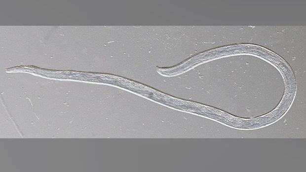 Cacing mata ditemukan di mata wanita Amerika Serikat