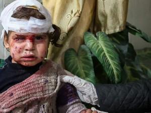 Satu dari Enam Anak di Dunia Tinggal di Zona Konflik