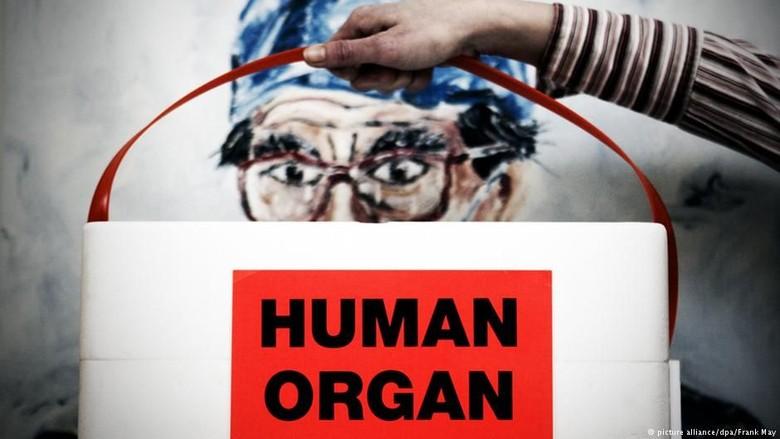 UU Baru: Warga Belanda Otomatis Akan Menjadi Donor Organ Tubuh