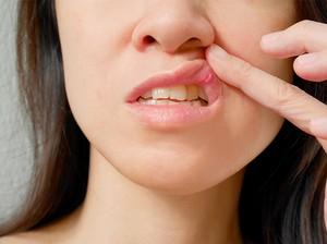 Tak Perlu Diolesi Obat, Atasi Sariawan dengan 10 Bahan Alami Ini!