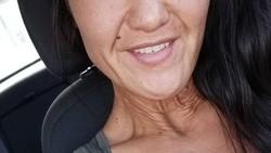 Sara Geurts adalah penyandang kondisi genetik langka Ehlers-Danlos Syndrome (EDS). Kulitnya mengendur dan kering sehingga ia tampak jadi seperti lansia.