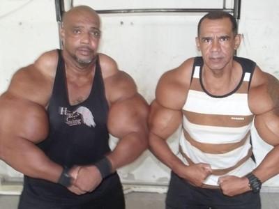 Potret Kakak Beradik yang Gemar Suntikkan Senyawa Kimia Demi Otot Besar