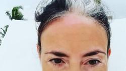 Cantik adalah satu kata yang menggambarkan helaian rambut poliosis yang dimiliki oleh para wanita ini. Kalian setuju kan?