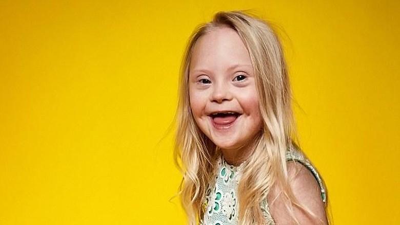 Keren! Saat Anak-anak dengan Disabilitas Jadi Model / Foto: Istimewa