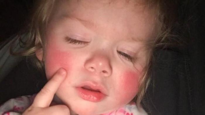 Seorang anak di Minnesota baru-baru ini didiagnosis mengidap alergi air bernama Aquagenic Urticaria. Foto: internet