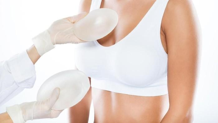 Ilustrasi tindakan medis operasi payudara. Foto: Thinkstock