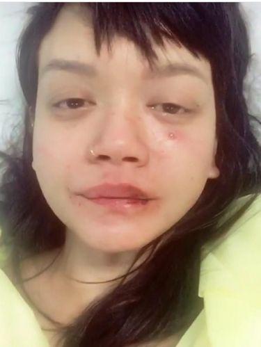 Dylan Sada pernah mengunggah foto saat jadi korban kekerasan kekasihnya.