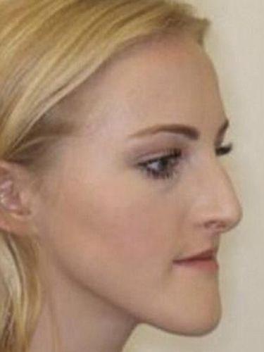 Penampilan Lauren sebelum operasi