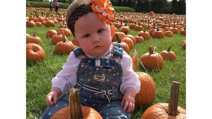 Sejak lahir pada 2014 lalu, Addison Garvey tak pernah bisa tersenyum. Ia didiagnosis penyakit Moebius Syndrome. (Foto: SWNS.com/Jennifer Garvey)