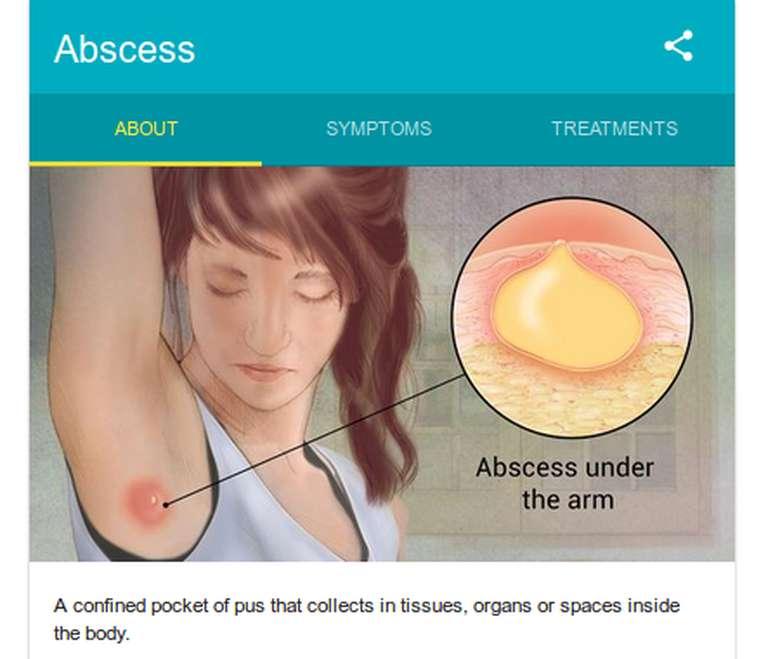 Memang menunjukkan abses sih, tapi kesannya jadi seperti orang mencium bau ketiak nih: Mungkin besok ganti deodoran saja ya? (Foto: Google Search)