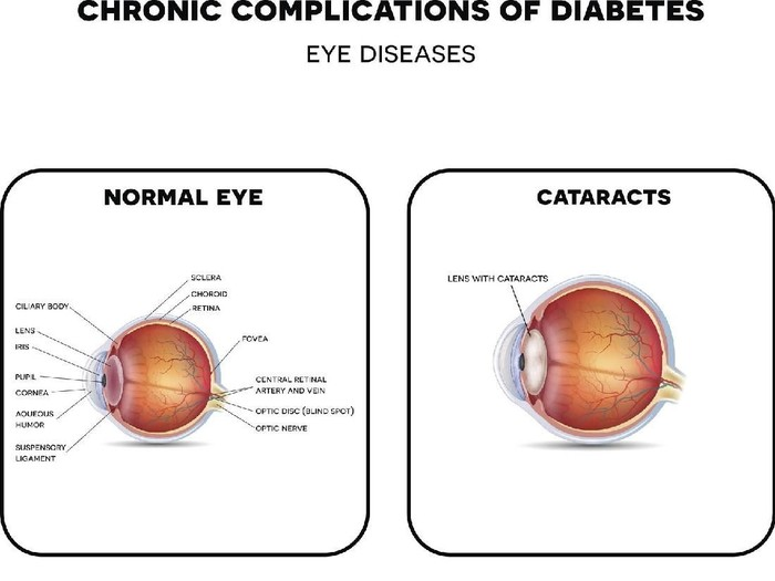 Diabetic Eye Diseases. Diabetic retinopathy,  cataract and glaucoma. Also healthy eye detailed anatomy.