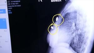 Misteri 2 Peluru Nyangkut di Dada Atikah Bikin Dokter Heran