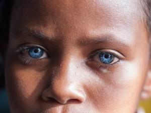 Aww.. Mata Biru Menyala Penyandang Sindrom Waardenburg