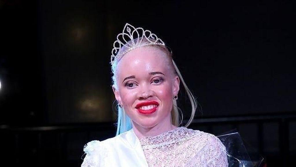 Beda Dari yang Lain, Kontes Kecantikan Ini Khusus untuk Albino