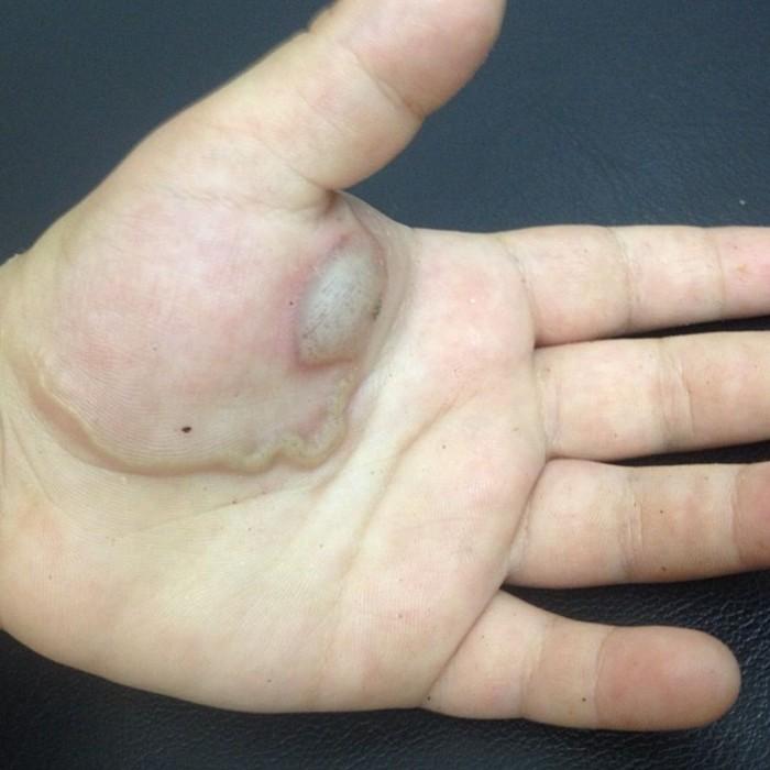 Kondisi cacing parasit di kulit dalam dunia kedokteran disebut cutaneous larva migrans (CLM). (Foto: Instagram/dermaorto)