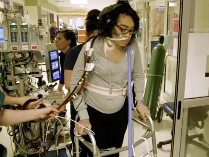 Zei Uwadia harus memakai extracorporeal membrane oxygenation (ECMO) seumur hidup. Foto: CNN