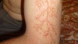 Bagi mereka yang beruntung bisa selamat dari sambaran petir, biasanya akan ada luka yang khas tertinggi di tubuh mereka.