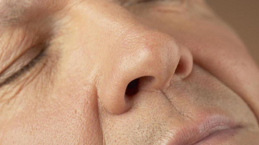 Mimisan 3 Bulan dan Ada Benjolan, Hidung Pria Ini Terinfeksi Parasit