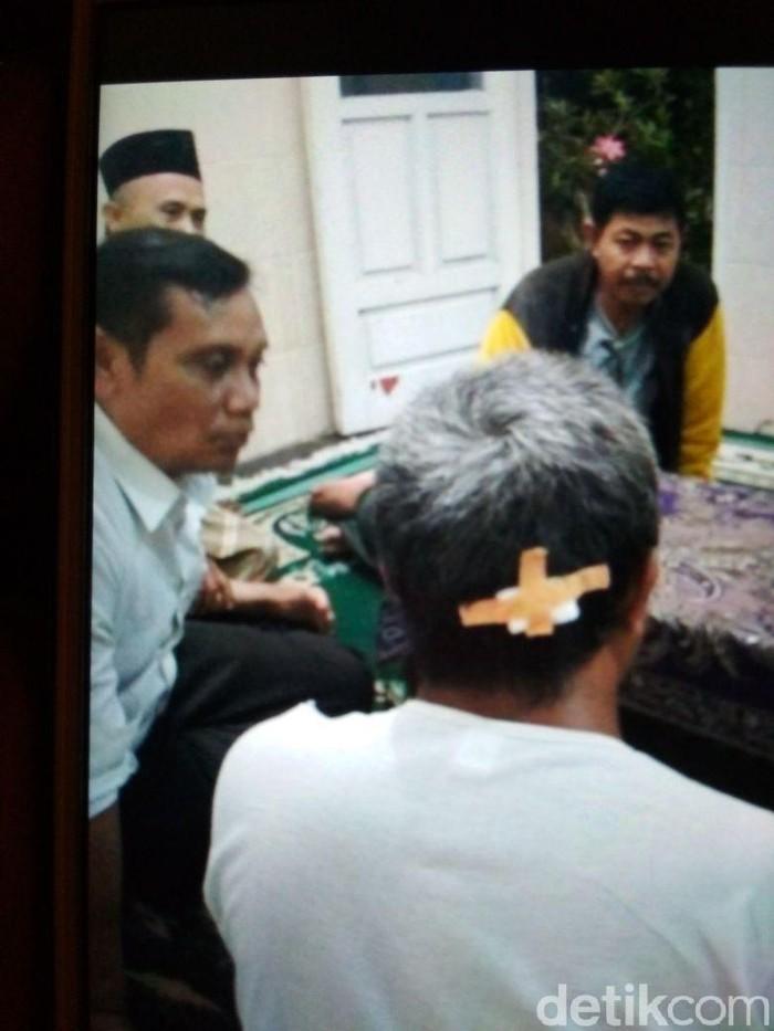 Kepala bagian belakang korban terluka dipukul kapak (Foto: istimewa)