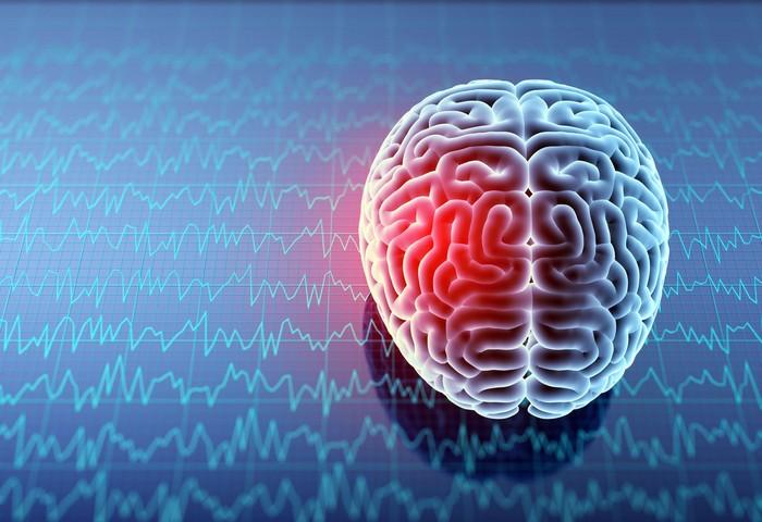 ilustrasi otak