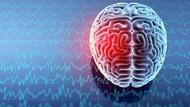 Cara Baru Hubungkan Otak Manusia ke Komputer: Tanam Alat di Urat Nadi
