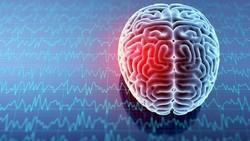 Ngeri! Pusing Usai ke Chiropratic, Ternyata Ada Kista di Otak Kiri