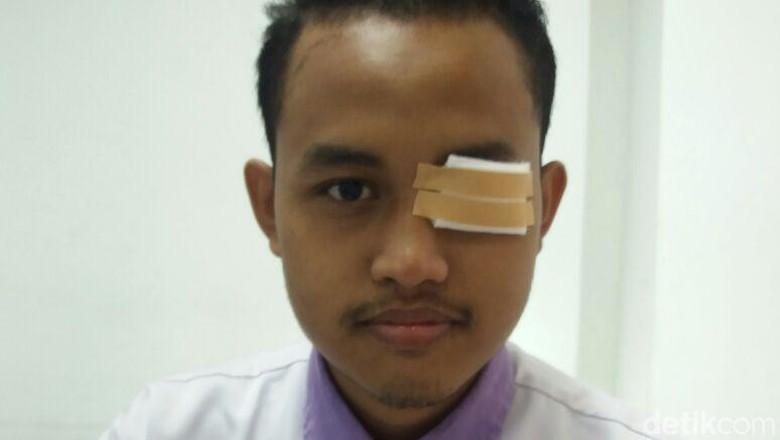 Viral Pemuda yang Matanya Infeksi Berat Karena Abu Rokok Pemotor