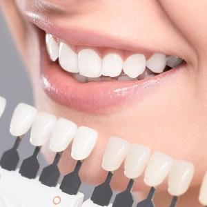 Viral di TikTok, Tren Pakai Produk Pemutih Berbahaya di Gigi