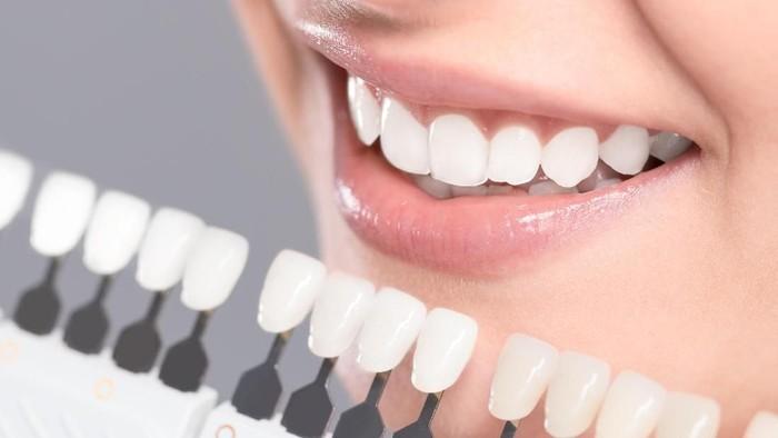 Tidak semua gigi bisa dipasang veneer. Foto: thinkstock