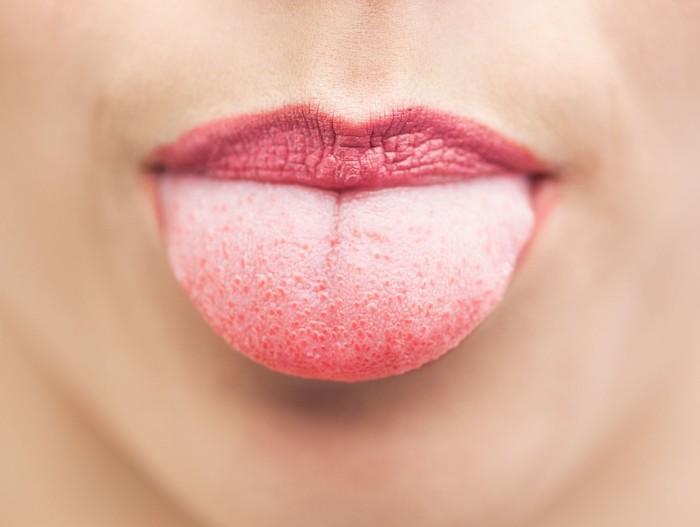Orang yang terkena penyakit diabetes biasanya sering mengalami sariawan. Pada dasarnya, sariawan merupakan sebuah infeksi yang terjadi dalam mulut atau lidah yang tampak seperti lapisan putih. Pengidap diabetes juga cenderung memiliki mulut yang kering karena sering mengalami dehidrasi. Foto: Thinkstock