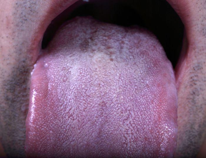 lidah ungu