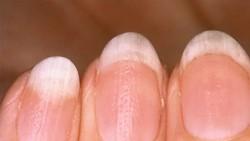 Kuku yang bermasalah bisa memiliki warna dan tekstur beberapa dari kuku normal. Hal ini bisa diperhatikan bila seseorang jeli merawat kukunya.