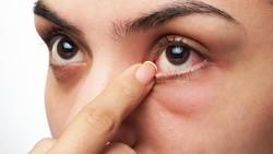 Mengucek mata sudah jadi kebiasaan yang bahkan sering tak kita sadari. Namun, apakah kamu tahu apa saja penyebab mata kita bisa terasa gatal?
