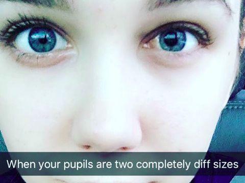 Emma memperlihatkan pupil matanya yang berbeda ukuran, tanda mengalami masalah penglihatan