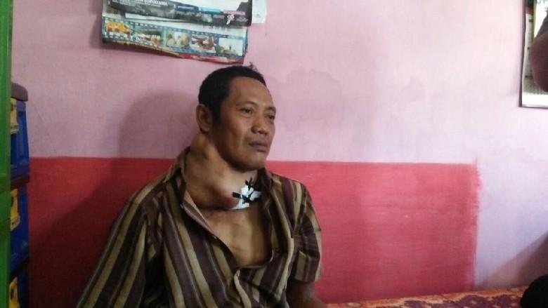 Derita Pria di Jombang yang 5 Tahun Sakit Kanker Tiroid
