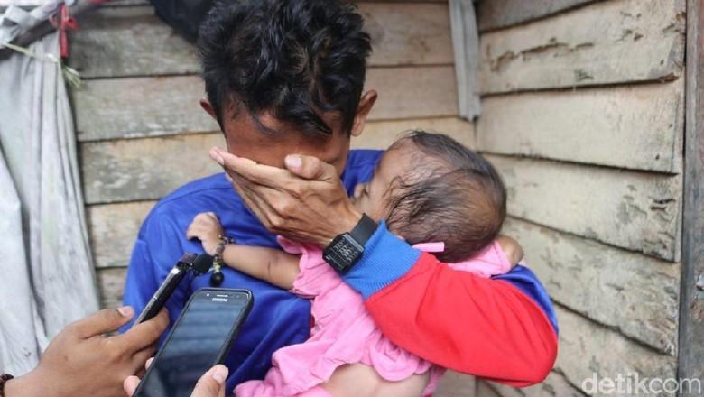 Miris! Bayi Alami Gizi Buruk 400 Meter dari Rumah Bupati Inhil
