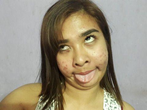 Riri Flores diejek karena wajahnya berjerawat