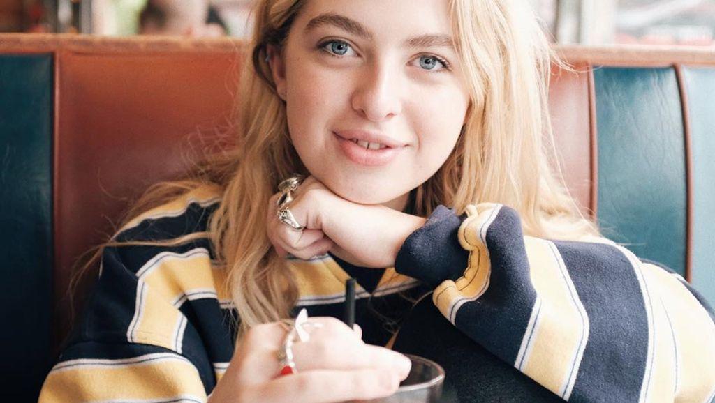 Curhat Putri Noel Gallagher Soal Masalah Kulit yang Dialaminya