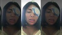 Ingin Cantik dengan Ganti Warna Mata, Nasib Selebgram Ini Berakhir Tragis