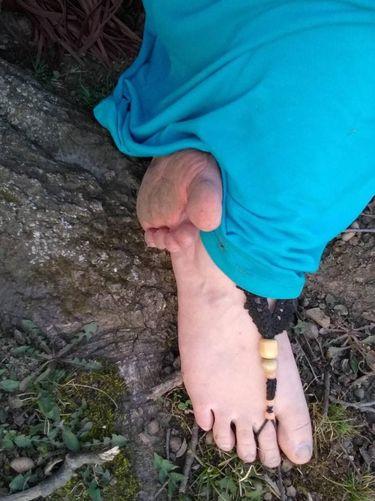 3 Tahun Nyeker Tak Pakai Sepatu, Kaki Kassandra Jadi Seperti Ini