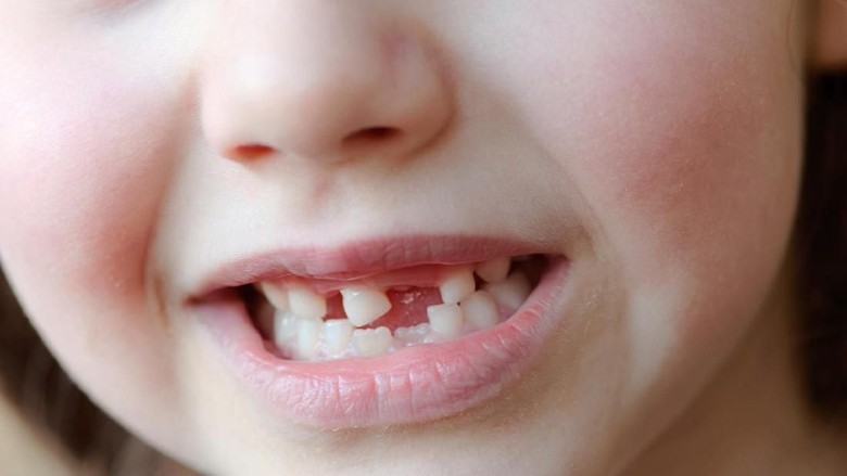 Anakku Kehilangan 3 Gigi Saat Pulang dari Daycare/ Foto: Thinkstock