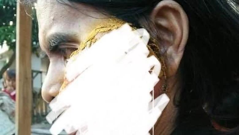 Ditolong Hamba Allah, Warga NTB Penderita Tumor Wajah Jalani Operasi