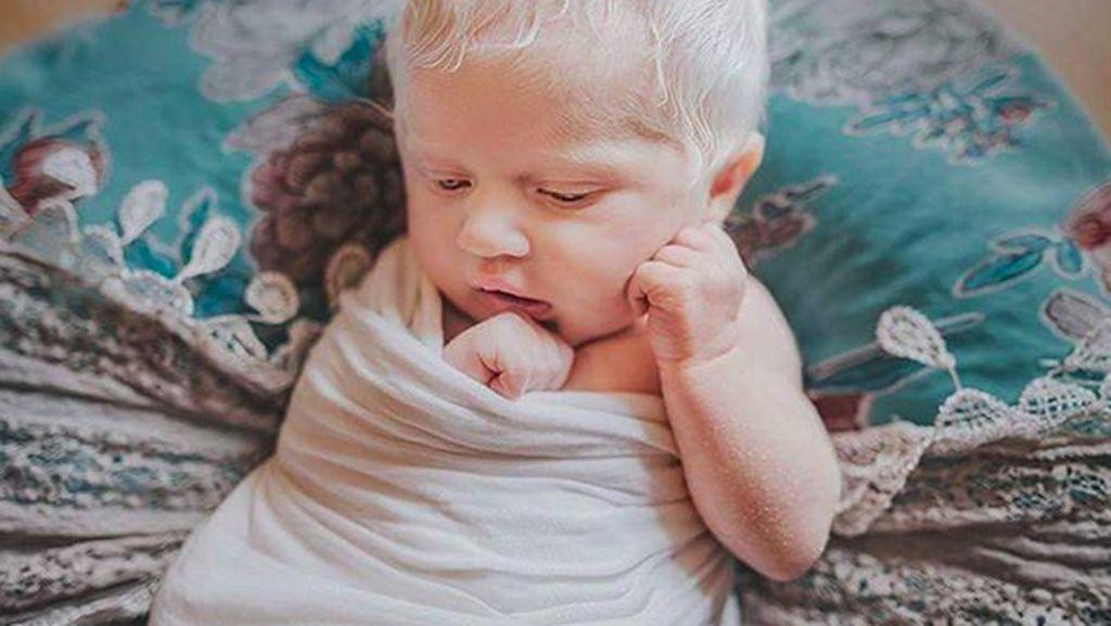 Nora, si Bayi Elsa Frozen yang Berambut Putih karena Albino