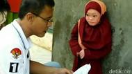 Kasihan Ayu, Bocah Asal Ciamis Ini Kulit Tubuhnya Mengelupas