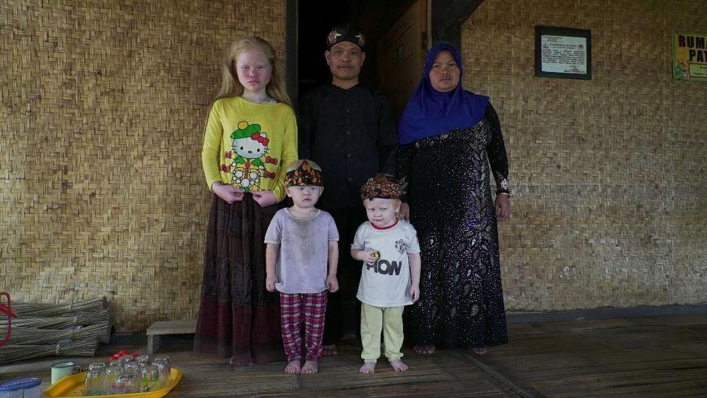 Kisah Walanda Sunda di Kampung Albino Ciburuy