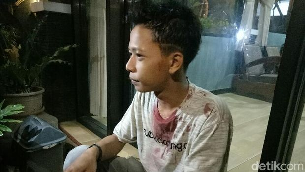 Anwar yang kepalanya bocor akibat dipukul botol